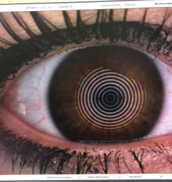 Auge beim Tränenfilmscreening